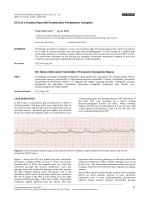 ECG of a Guinea Pig with Ventricular Premature Complex