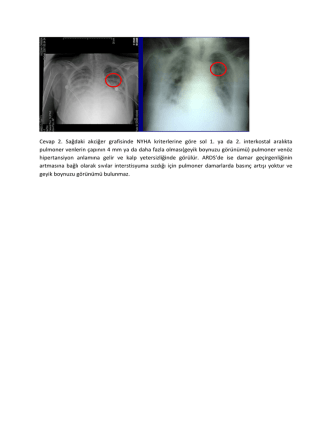 Cevap 2. Sağdaki akciğer grafisinde NYHA kriterlerine göre sol 1. ya