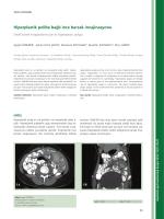 Hiperplastik polibe bağlı ince barsak invajinasyonu
