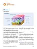 Melanom - Krebsliga Schweiz