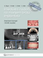 Imedijatni nadomjesci na manjem broju implantata
