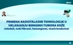 Primena radiotalasne tehnologije u uklanjanju benignih tumora kože