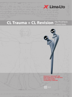 CL Trauma + CL Revision Hip Prosthesis