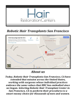Robotic Hair Transplants San Francisco: Artas Hair Replacement San Francisco, CA