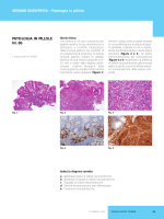 Tumore neuroendocrino ben differenziato