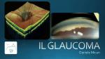 IL GLAUCOMA - LUTE Milazzo