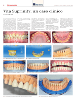 04-05 Vita Suprinity: un caso clinico