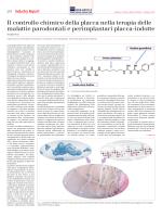 Il controllo chimico della placca nella terapia delle malattie