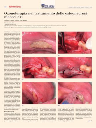 14-15 Ozonoterapia nel trattamento delle osteonecrosi mascellari