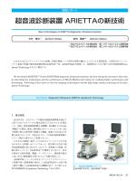 超音波診断装置 ARIETTAの新技術