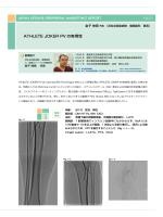 ATHLETE JOKER PV の有用性