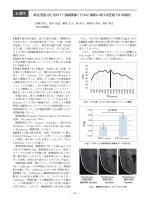 新生児脳 SE 法の T1強調画像(T1WI)撮影における至適 TR の検討