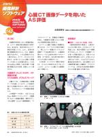 心臓CT画像データを用いた AS評価