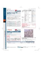 − 自己免疫/アレルギー関連 組換え体タンパク質 抗 SF-1 抗体
