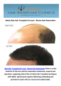 Best Hair Transplant in St Louis, MO