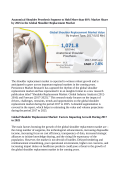 Shoulder Replacement Market Expected To Value US$ 2.9 Billion By 2025