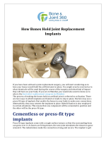 How Bones Hold Joint Replacement Implants
