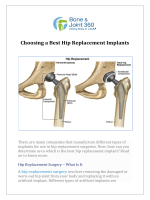 Choosing a Best Hip Replacement Implants
